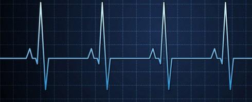 Electrocardiogramme server-status Apache